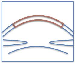 PK diagram